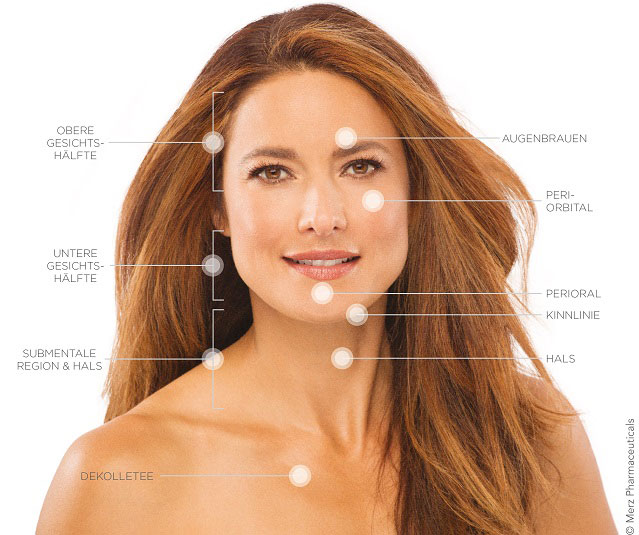 Ultherapy Behandlungsareale